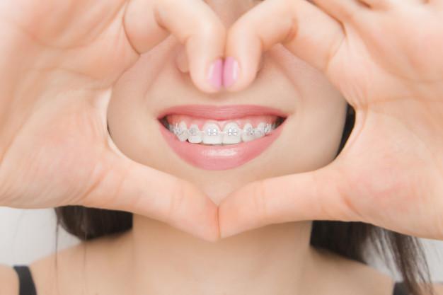 Aparat dentar - Servicii ortodontie Syrodent