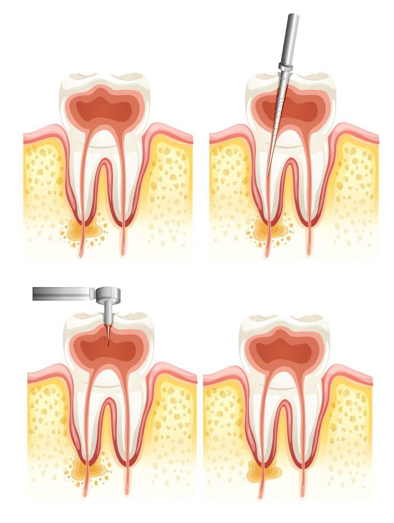 Tratamentul endodontic pentru nervul dintelui - Clinica Syrodent