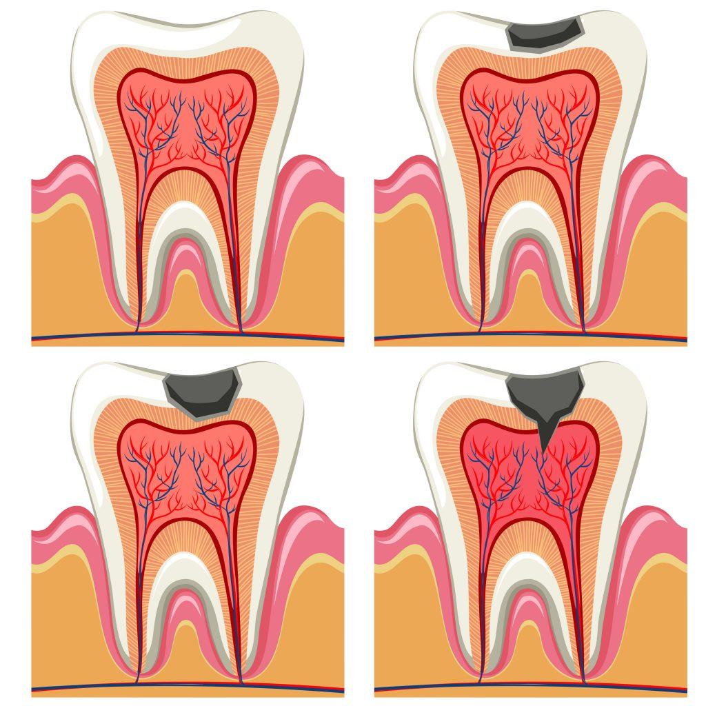 Cariile și nervul dintelui - Clinica Syrodent