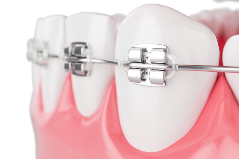 Servicii ortodonție - Aparat dentar Syrodent București
