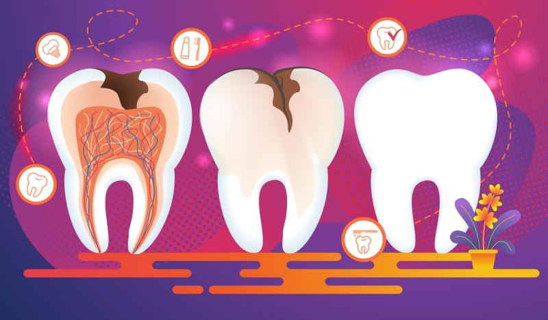 Tratament odontoterapie - evoluția cariei dentare