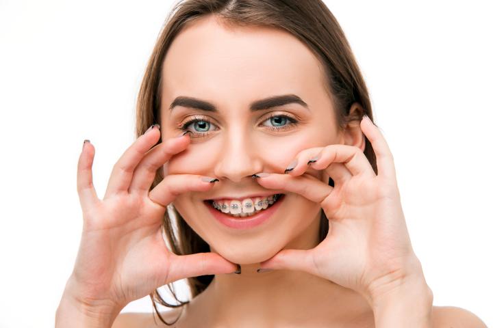 Aparat dentar - Clinica Syrodent Bucuresti