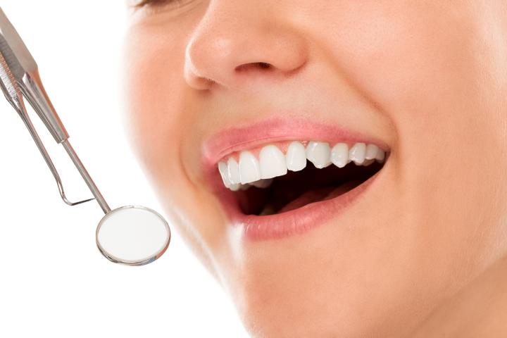 Control pentru caria dentara - Syrodent