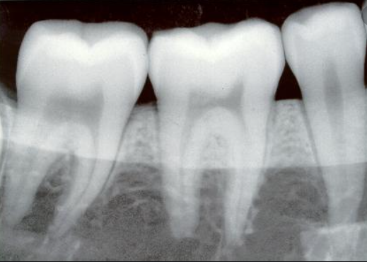 Radiografie dentara retroalveolara - Clinica Syrodent