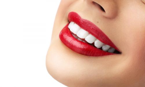 Tratament albire dentara - Clinica SyroDent